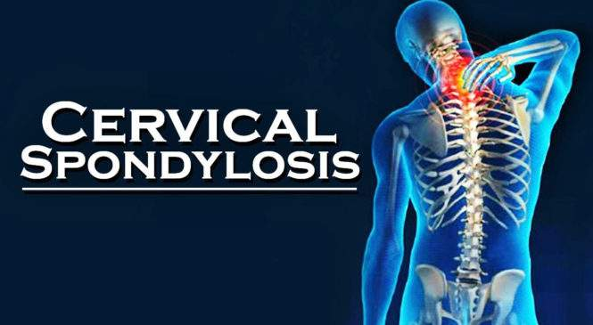 Say good…bye to Neck Pain and Cervical Spondylosis!